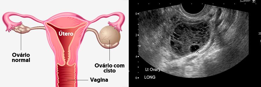 cisto no ovário o que é